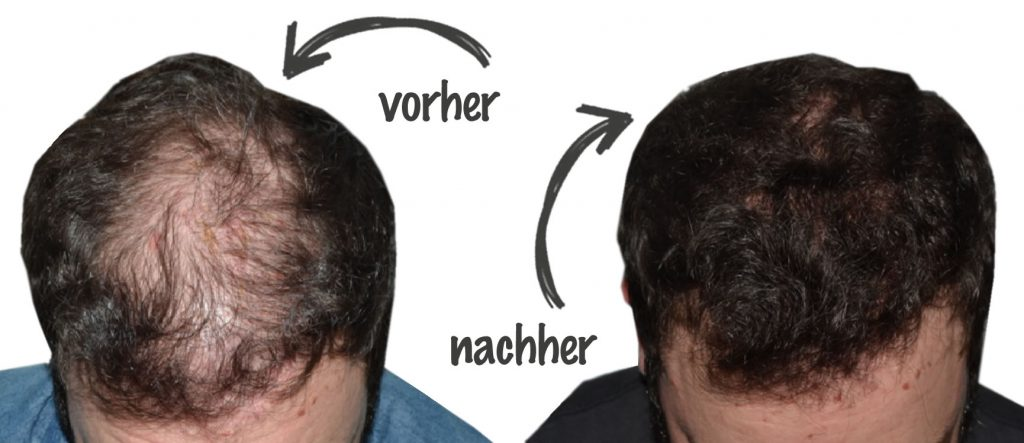 Haartransplantation im Iran