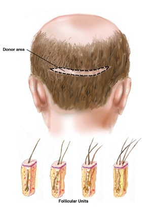 Hair grafting - hair transplant in Iran