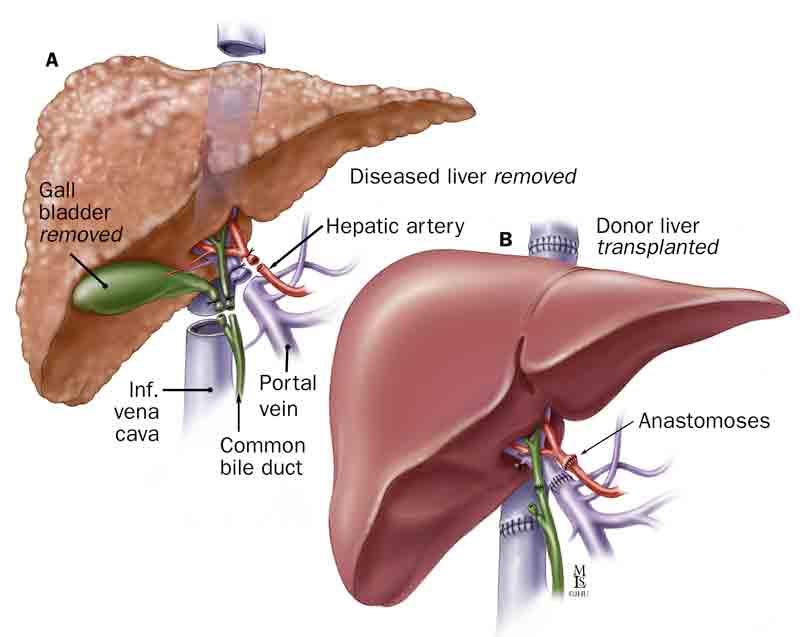Liver Transplant Surgery, Shiraz , Iran