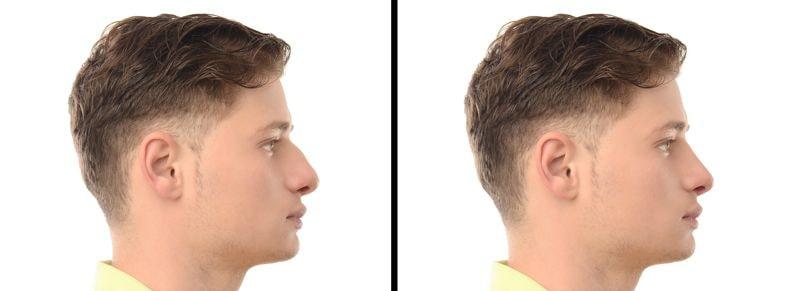 Nasenoperation für Männer