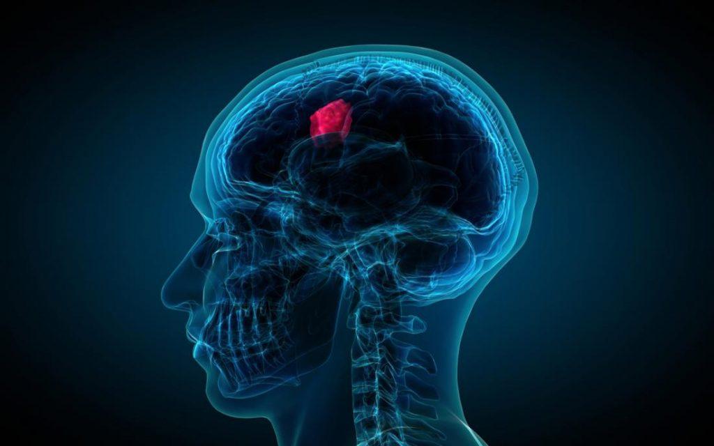 cyberknife for brain tumors
