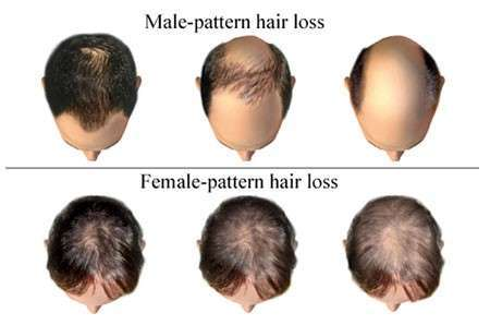 hair loss pattern - hair transplant in Iran