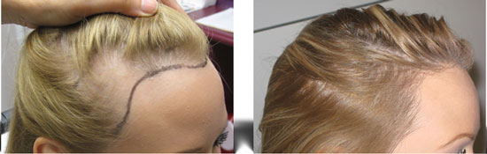hair transplant for women