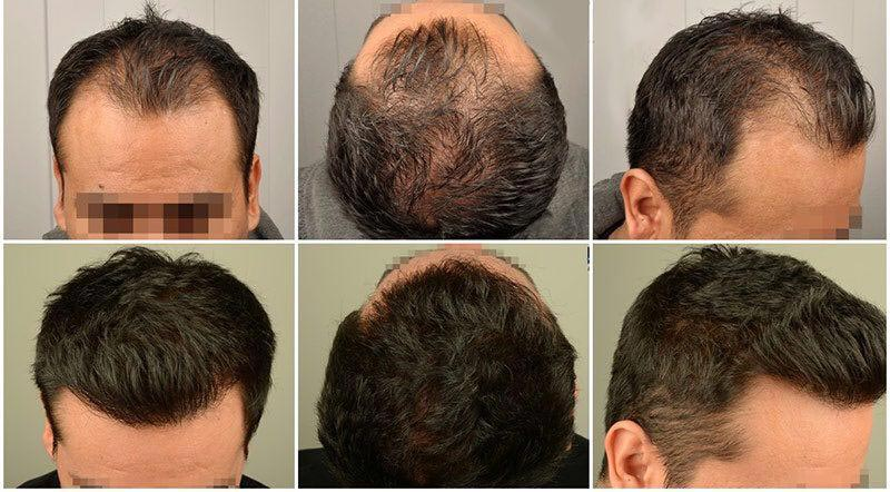 hair transplant in Iran - travel to Iran