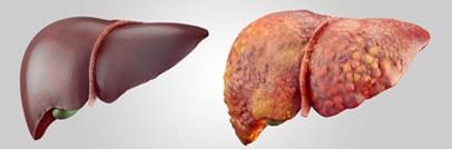 Trasplante de hígado en Shiraz, Iran