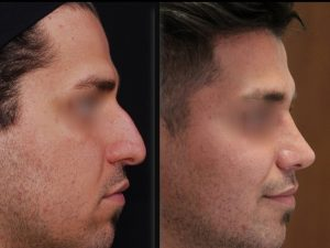 nose job in Iran for men