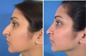 nose job in Iran - women